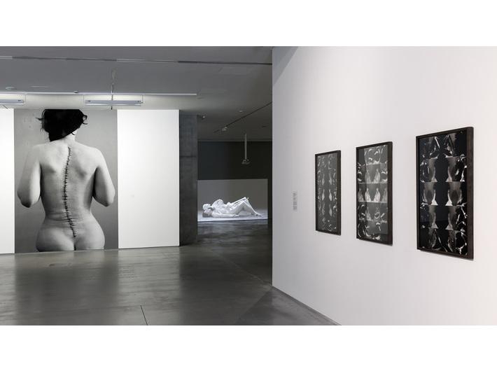 Widok wystawy //Medycyna w sztuce//, fot. Rafał Sosin