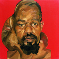 Mark Gilbert, //Hakeem S. (pre op)//, oil / canvas, 1999–2000, Courtesy of Saving Faces, Mark Gilbert, Professor Iain Hutchison483