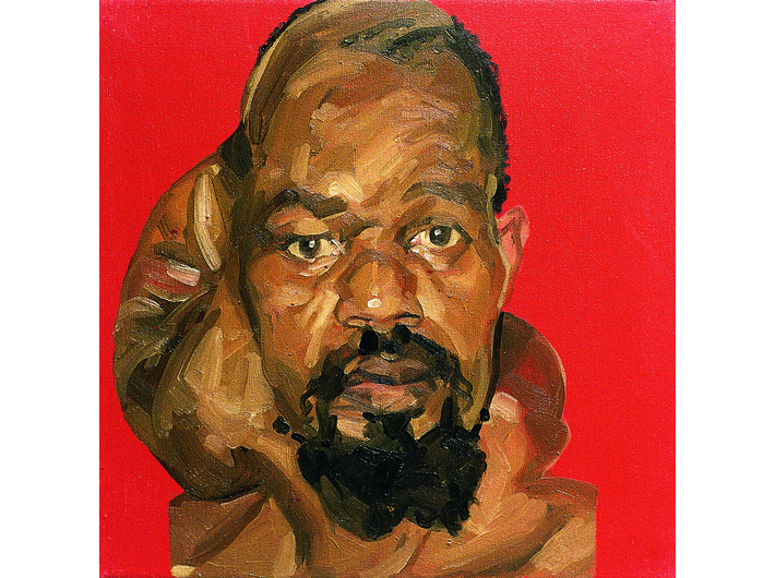 Mark Gilbert, //Hakeem S. (pre op)//, oil / canvas, 1999–2000, Courtesy of Saving Faces, Mark Gilbert, Professor Iain Hutchison