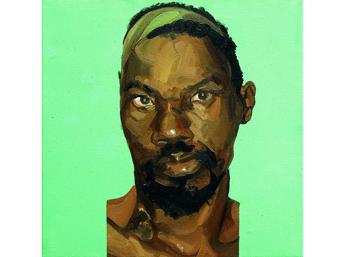 Mark Gilbert, //Hakeem S. (post op) I//, oil / canvas, 1999–2000, Courtesy of Saving Faces, Mark Gilbert, Professor Iain Hutchison